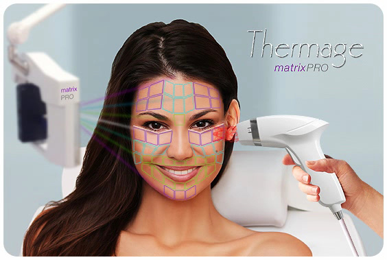 Thermage matrixPRO